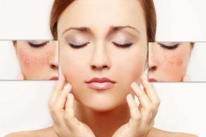 Pflege der Haut mit sichtbaren Äderchen – Hausmittel, Kosmetik und natürliche Heilung