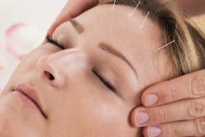 Kosmetische Akupunktur, also eine Methode für Verjüngung