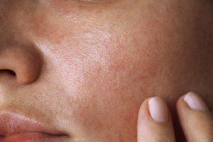 Make-up für fettige Haut: Tricks und Tipps
