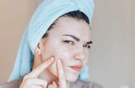 Schneller Trick gegen Pickel. Wie entfernen Sie den unerwünschten Gast im Gesicht?